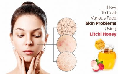 How To Treat Various Face Skin Problems Using Litchi Honey